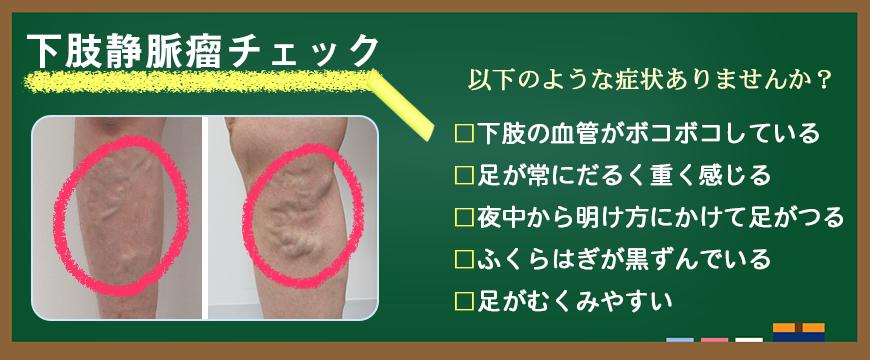 下肢静脈瘤チェック