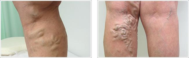 足のコブ血管が一番多い症状
